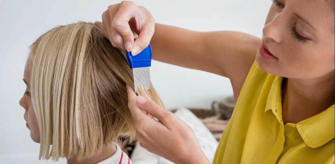 Options for best head lice treatment